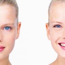 Cirugía de las orejas: otoplastia