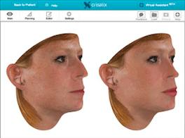 simulador-de-resultados-doctor-diaz-gutierrez-cirugia-plastica-facial