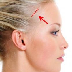 lifting-temporal-cirujano-plastico-madrid