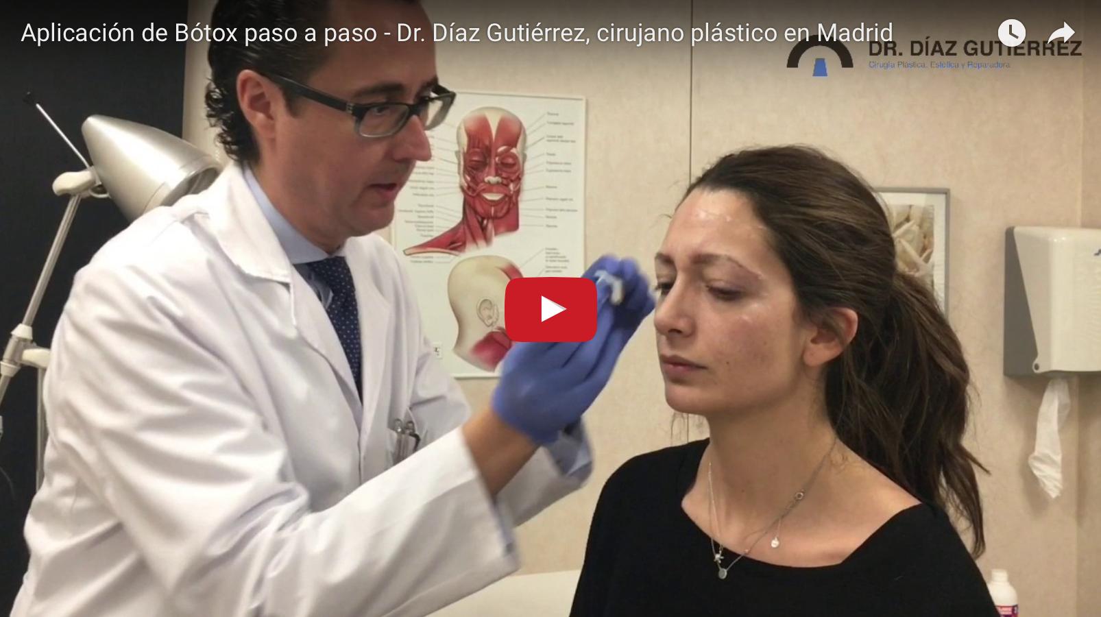 aplicación-botox-preventivo-cirujano-plastico