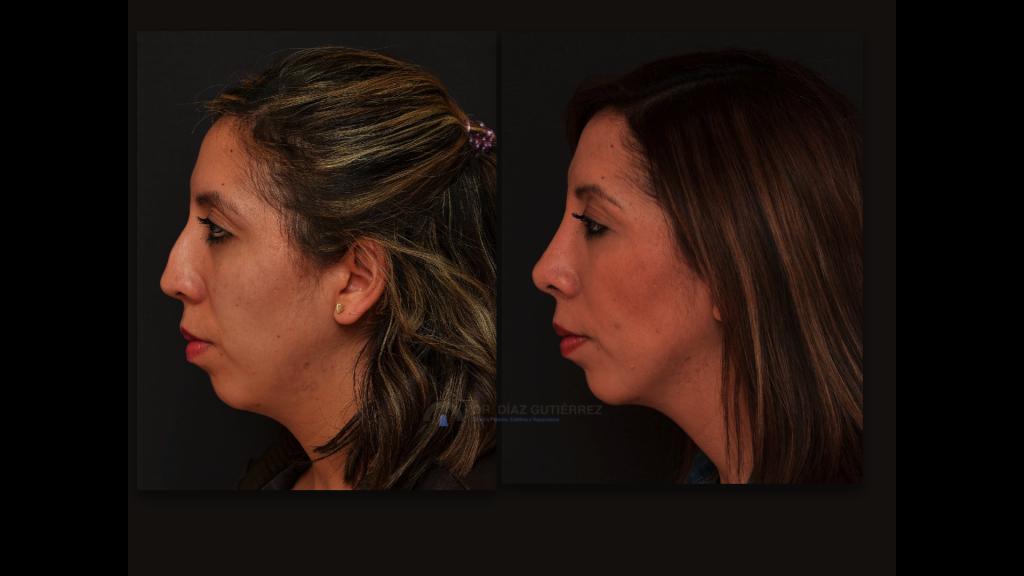 rinoplastia-cirujano-plastico-madrid-11