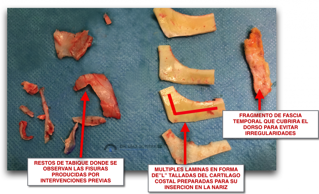 rinoplastia-cirujano-plastico-madrid-6
