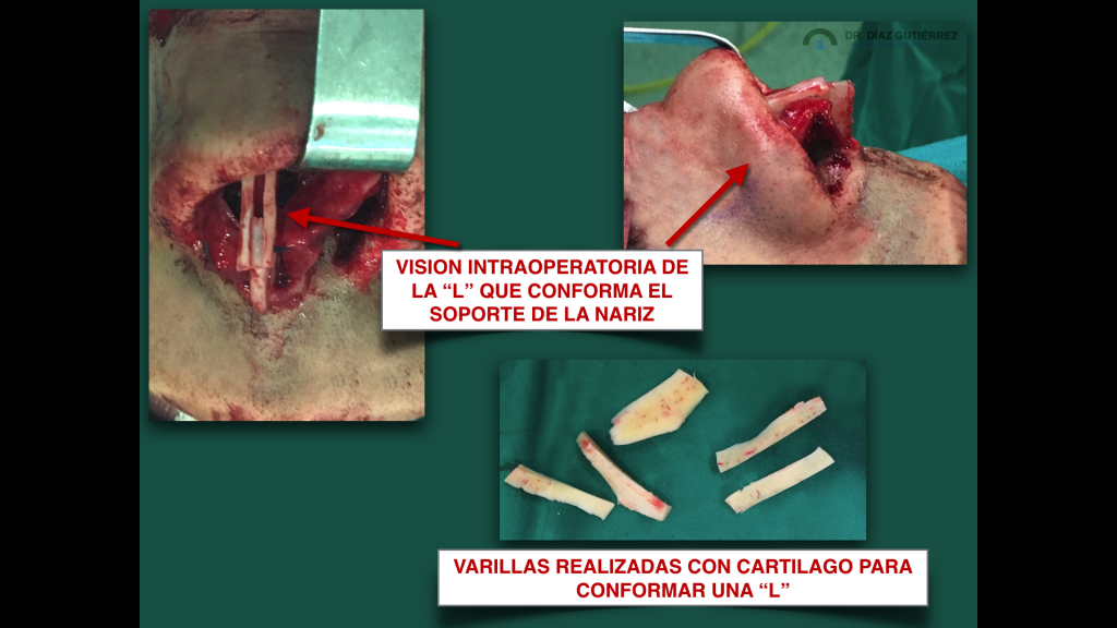rinoplastia-cirujano-plastico-madrid-7
