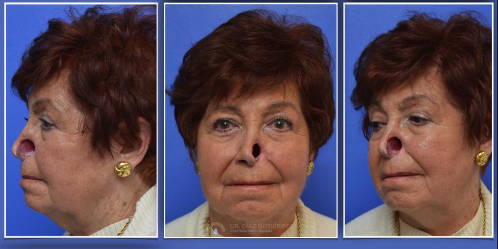 reconstrucción-nasal-cirujano-plastico-madrid-2