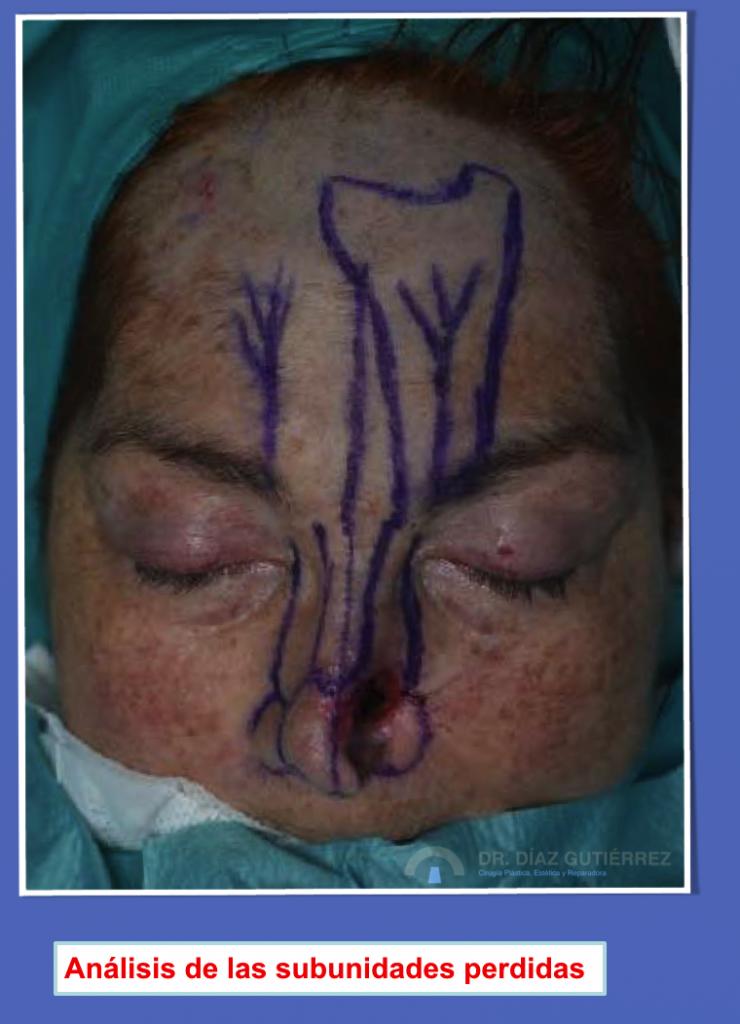 reconstrucción-nasal-cirujano-plastico-madrid
