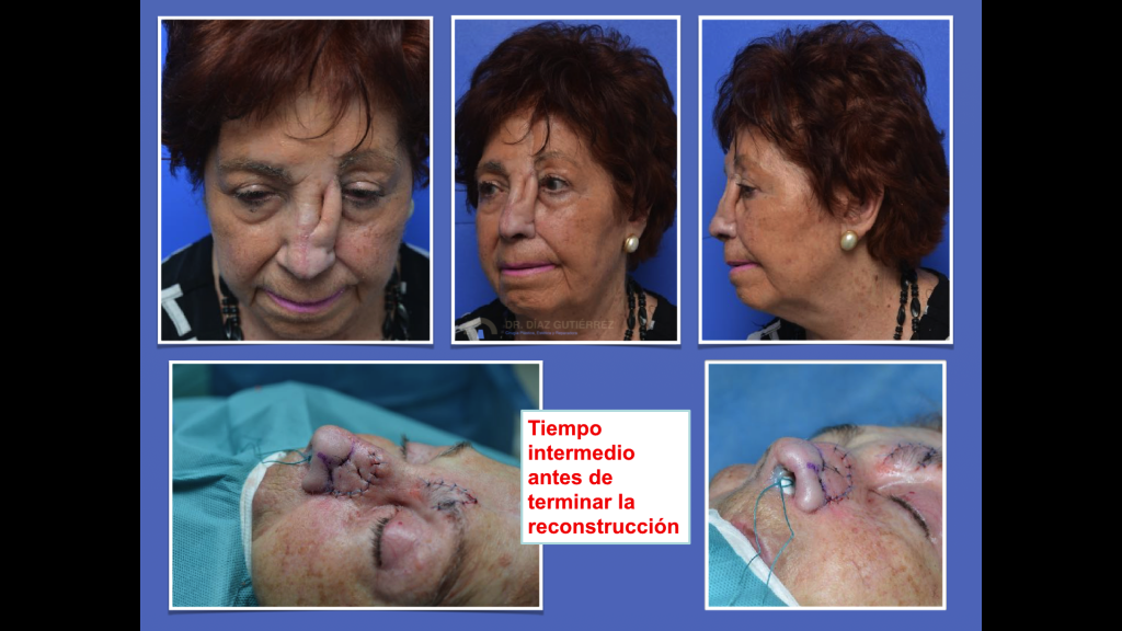 reconstrucción-nasal-cirujano-plastico-madrid-5