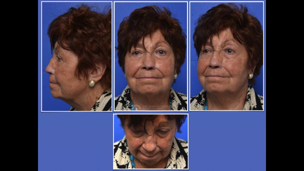 reconstrucción-nasal-cirujano-plastico-madrid-6