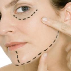 lifting-cervicofacial-cirujano-plastico-madrid
